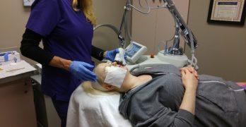 Laser Skin Resurfacing: Is it Worth it?
